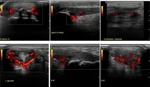 Power Doppler ultrasound in 'overuse' and 'inflammatory' tendon disorders. Sonographically it is often impossible to determine the cause of tendinopathy from Power Doppler signals. The top row of images are all of patients without underlying rheumatological diagnosis and in whom mechanical overload or injury was the cause of the tendinopathy (from left to right insertional Achilles tendinopathy, proximal patellar tendon pathology and mid-peroneal tendon pathology). The bottom row of images is of patients with a known inflammatory rheumatological diagnosis. From left to right tibialis posterior tendinopathy (in RA) and insertional Achilles tendinopathy in a patient with reactive arthritis (longitudinal and transverse sections).