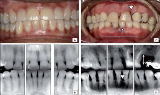 Clinical comparison between healthy and periodontitis patients A) frontal intra-oral view for a patient with gingival health and stable periodontium demonstrating normal gingival color, marginal gingival level and intact inter-dental papillae; B) periapical radiographs for the patient in A, showing stable periodontium, normal bone level and absence of vertical bone defect; C) frontal intra-oral view of a patient with moderate to severe periodontitis presenting as loss of attachment (triangle), recession (arrow) and gingival edema (brace); D) periapical radiographs for the patient in C, showing calculus accumulation, horizontal bone loss (arrow) and vertical bone defect (triangle).