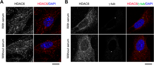HDAC6 is enriched at the centrosome and basal body.(A) Immunofluorescence images of RPE1 cells cultured with or without serum for 24 hours and stained with HDAC6 antibody and DAPI. Scale bar, 5 μm. (B) Immunofluorescence images of RPE1 cells cultured with or without serum for 24 hours and stained with HDAC6 and γ-tubulin antibodies and DAPI. Scale bar, 5 μm.