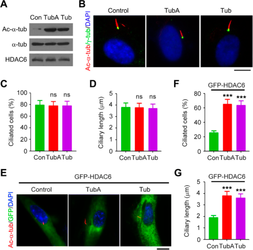 Pharmacological inhibition of HDAC6 activity protects cells from ciliary disassembly induced by HDAC6 overexpression.(A) Western blot analysis of acetylated α-tubulin, α-tubulin, and HDAC6 in RPE1 cells treated with tubastatin A (TubA, 2 μM), tubacin (Tub, 2 μM), or vehicle control for 4 hours. (B–D) Immunofluorescence images (B), percentage of ciliated cells (C), and ciliary length (D) in RPE1 cells treated with tubastatin A (2 μM), tubacin (2 μM), or vehicle control, serum-starved for 24 hours, and stained with acetylated α-tubulin and γ-tubulin antibodies and DAPI. Scale bar, 5 μm. (E–G) Immunofluorescence images (E), percentage of ciliated cells (F), and ciliary length (G) in RPE1 cells transfected with GFP-HDAC6, starved in serum-free medium containing tubastatin A (2 μM), tubacin (2 μM), or vehicle control for 24 hours, and stained with acetylated α-tubulin antibody and DAPI. Scale bar, 5 μM. ***P < 0.001; ns, not significant. Error bars indicate SEM.