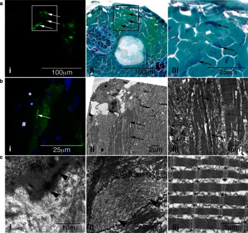 Characterization of skeletal muscle pathology in Tg(ACTA1D286G-eGFP)high zebrafish. a Skeletal muscle expressing i mosaic ACTA1D286G-eGFP, and ii overlaid with a light microscopy image of the same section showing Gomori trichrome staining, and iii enlarged. Dark regions (indicative of nemaline bodies) of disrupted muscle correspond to eGFP expression (arrows). b Correlative light and electron microscopy of Tg(ACTA1D286G-eGFP)high fish muscle at 2 dpf. bi Fluorescent image and corresponding ii electron microscopy image of skeletal muscle section containing a dense, elongated nemaline body (arrow) and enlarged in (iii). Sections are matched using nuclei positions (asterisk, plus and hash). ci Accumulations of actin filaments (arrowheads) and ii diffuse regions of filamentous actin (arrowheads), as well as ii disrupted sarcomeric regions are evident in Tg(ACTA1D286G-eGFP)high skeletal muscle, at 2 dpf unlike the iii uniform sarcomeres observed in Tg(ACTA1-eGFP) zebrafish