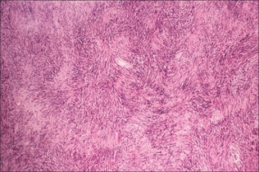 Histology of schwannoma with its characteristics pattern