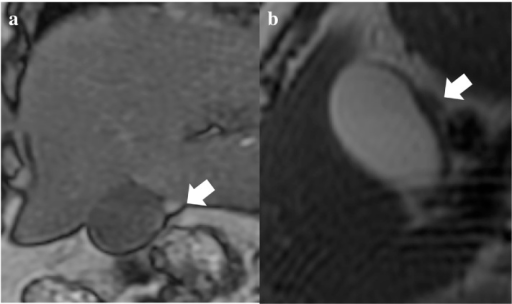 A magnetic resonance imaging (MRI) scan shows the accessory lobe at the surface of gallbladder (arrows): (a) T1WI and (b) T2WI.