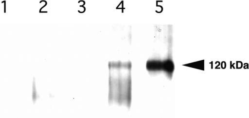 Coprecipitation of the AChR and α7β1 integrin. Anti-AChR antibody and protein G–agarose were used to immunoprecipitate extracts prepared from C2C12α7BX2 myotubes.  Western blot analysis using anti-α7 cytoplasmic domain B antibody of (1) uninduced cells, no anti-AChR antibody, (2) uninduced cells, (3) agrin-induced cells, (4) laminin and agrin-induced  cells, and (5) laminin-induced cells, reveals laminin-dependent  coprecipitation of the AChR and integrin. The α7 chain may undergo increased proteolytic processing (Song et al., 1992) in the  presence of both agrin and laminin.