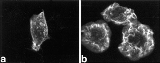 FMLP or CSF-1 induces F-actin–rich ruffles in RAW LacR/ FMLPR.2 cells. Cells were fixed and stained with rhodamine-phalloidin  as described in Materials and Methods. (a) Unstimulated. (b) Cells incubated with 100 nM FMLP for 1 min. (c) Cells incubated with 10 ng/ml  CSF-1 for 5 min. Bar = 10 μm. (d) Inhibition of FMLP-induced ruffles  by pertussis toxin (1 ng/ml for 24 h) in RAW LacR/FMLPR.2 cells.  Solid bars, − pertussis toxin; striped bars, + pertussis toxin.