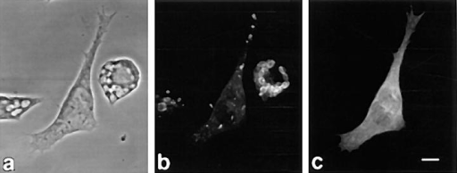 Inhibition of FcγR-mediated phagocytosis by Cdc42 N17.  Phagocytosis assay was performed as described in Materials and Methods.  (a) Phase-contrast micrograph. (b) Fluorescence micrograph of rhodamine  anti–rabbit IgG-stained cells to indicate presence of IgG-RBCs. After fixation and permeabilization, uningested erythrocytes appear crenated. (c)  Fluorescence micrograph of anti-Myc–stained cell to indicate expression  of Myc-tagged Cdc42 N17. Note ingestion of IgG-RBCs in neighboring  cells not expressing the Myc epitope.