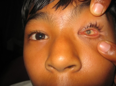 A 18-year-old male with left microphthalmus related to congenital rubella infection.