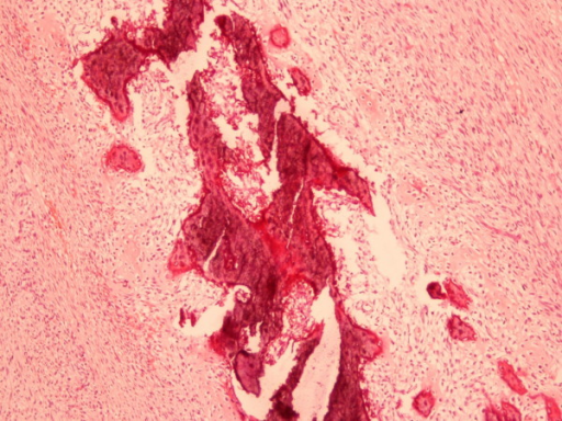 Non-differentiated part of the tumor with the pattern of malignant fibrous histiocytoma (x 100) hematoxylin and eosin staining
