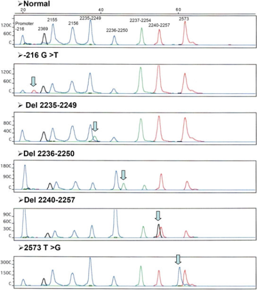 Detection of wild-type and mutant EGFR by primer extension analysis. NSCLC DNA samples of wild-type EGFR and ones containing the following mutations: -216 G/T, 2235-2249 del, 2236-2250 del, 2240-2257 del, and 2573 T>G.