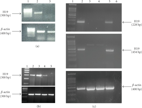 H19 RNA level in human and hamster pancreatic carcinoma cell lines. (a) Lane 1: 100 bp marker, Lane 2: CRL-1469 cells, Lane 3: PC.1-0 hamster cells. (b) Lane 1: 100 bp marker, Lanes 2–5: CRL-2547, CRL-1687, CRL-2119, and CRL-1997 human pancreatic carcinoma cells, respectively. (c) Lane 1: 100 bp marker; Lane 2: mouse control; Lane 3: PC.1-0 cells cultured under normoxia conditions; Lane 4: PC.1-0 cells cultured under hypoxia condition for 4 hours; Lane 5: tumors generated by PC.1-0 cells injection into nude mice back; Lane 6: negative control, no cDNA is present in the reaction mixture. The upper and the middle panels show the 228 bp and the 454 bp PCR products, respectively, obtained using two different primers (H19-mouse 228 and H19-mouse 454 as described in Supplementary data, Table A). The lower panel indicates the 400 bp β-actin internal control.