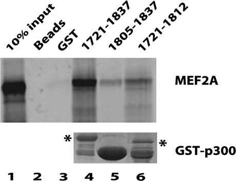 In vitro binding assay of the interaction between the p300 TAZ2 domain and MEF2A. Top panel: binding of the 35S-labeled MEF2A to various GST-TAZ2 fusion proteins. Lane 2 was MEF2A with beads only. Lane 3 was GST only protein. Bottom panel: GST-TAZ2 fusion proteins used in the top panel were analyzed by SDS–PAGE. The non-degraded fusion protein bands are indicated by stars.