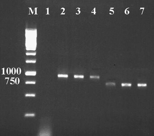 how to read agarose gel electrophoresis results
