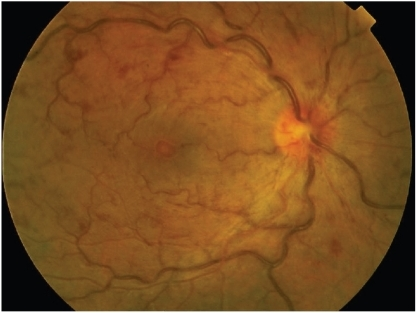 Case 5. Fundus photo of the right eye shows a hyperemic disc with slightly indistinct borders especially nasally. The arteries are attenuated and the veins exhibit severe dilation and tortuosity with focal constrictions at areas of arterio-venous crossings. The posterior pole shows multiple intraretinal hemorrhages and cotton wool spots and retinal thickening. The perifoveal vessels are also dilated and tortuous and the foveal reflex is dull. There is a white-centered hemorrhage at the fovea.