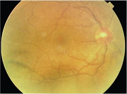 Case 5. After treatment with sulfonamides and doxycycline, fundus photo shows that disc vessels are still dilated, but with distinct disc borders. There is marked decrease in vessel tortuosity and dilation. There is also an evident decrease in retinal edema and hemorrhages as compared to Figure 1A.