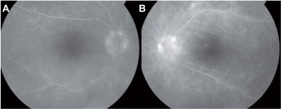 Case 4. Angiogram of both eyes shows papillary, peri-papillary, and choroidal fluorescence along the superior and inferior arcades. The macula area of the left eye also shows staining along the superior peri-foveal region.