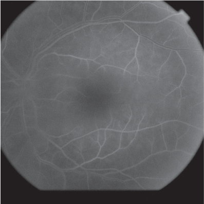Case 2. After treatment with doxycycline, angiogram shows less masking due to vitreous haze. There are no choroidal hyperflourescence and the perifoveal vessels appear non-dilated.