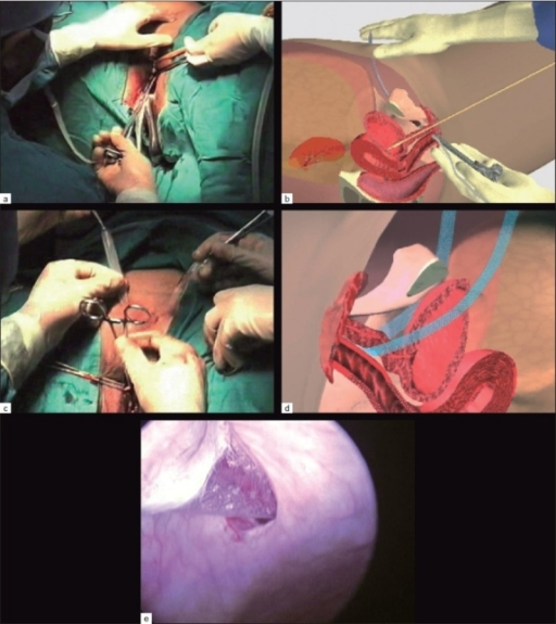 (a) TVT needle insertion on left Side with catheter and metal guide on same side, (b) Schematic insertion of TVT tape, (c) Adjusting tension free TVT, (d) Mechanism of action of mid Urethral application of TVT, (e) Bladder perforation of TVT