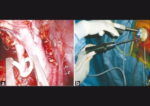 (a) Weck clip being applied during Right LESS donor Nephrectomy, (b) Surface view of LESS donor