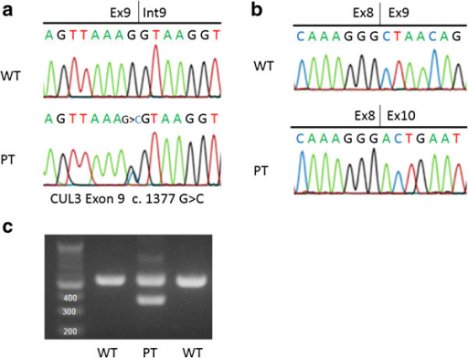 Result of direct sequencing of DNA and mRNA and splicing assay. (a) Sequence analysis of Cullin 3 DNA in the index patient. In the patient (PT), the last guanine (G) of exon 9 of the Cullin 3 in the wild type (WT) was displaced to cytosine (C). (b) Sequence analysis of Cullin 3 mRNA in the index patient. In the wild type (WT), exon 8 is followed by exon 9 in Cullin 3 mRNA. In contrast, exon 10 is present just after exon 8 as exon 9 is skipped in the patient (PT). (c) Reverse Transcription Polymerase Chain Reaction (RT-PCR) of Cullin 3 mRNA in the index patient. RT-PCR of Cullin 3 mRNA demonstrated a smaller molecular weight band (390 bp) only in the patient (PT) in addition to the band (561bp) observed in the wild type (WT). The smaller band is considered a product of the skipping of exon 9.