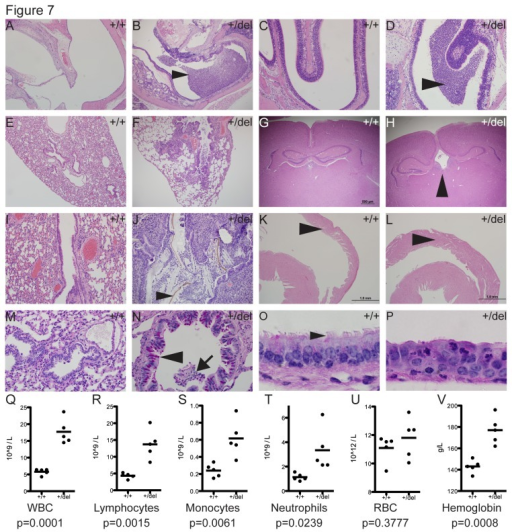 Novel observations in Porcn+/del FDH mouse model.In contrast to control Porcn+/+ animals, adult Porcn+/del females exhibit lesions suggestive of ciliary defects (A-H). Mutants exhibited otitis media (n=4/5, B), rhinitis (n=2/5, D), and bronchopneumonia (n=3/5, F). Mild hydrocephalus was observed in 2/5 Porcn+/del females (H). Arrowhead indicates enlarged third ventricle (H).Bronchopneumonia was characterized by large numbers of inflammatory cells and plant material/bedding in the bronchioles (arrowhead, J), and was accompanied by mild right ventricular hypertrophy (arrowhead, L). Mutant bronchiole epithelia had increased numbers of goblet cells (N, pink cells, arrowhead) in areas of inflammation as indicated by the presence of intraluminal inflammatory cells (N, arrow). Tracheal epithelia of mutants were mildly disorganized (P) and lacked cilia in segments of up to 200 μm long compared to controls (O, arrowhead).Consistent with chronic active inflammation, hematology profiles showed significant increases in white blood cells (WBC, Q), lymphocytes (R), monocytes (S), and neutrophils (T). Red blood cell (RBC) counts (U) and hemoglobin concentration (V) were also elevated. Blood cell counts were analyzed by unpaired student's t-test.Figures A-L: Hematoxylin & Eosin (H&E) stained sections. Figures M-P: Periodic Acid-Schiff (PAS) stained sections.