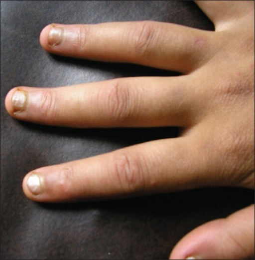 Puffy fingers in a patient with mixed connective tissue | Open-i