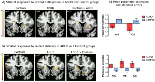 Striatal responses to reward anticipation and reward delivery in the ADHD and control groups.Brain activation displays were generated by overlaying SPM t-maps resulting from the group-level analyses on an MNI standard brain (p<.005 uncorrected, cluster size ≥5 voxel, for visualization purposes) and applying a gray matter mask. (A) Increased activation in the left dorsal striatum (head of caudate) and right ventral striatum (nucleus accumbens and ventral putamen) during reward anticipation in the control group. (B) Increased activation in the left dorsal striatum (head of caudate), left ventral striatum (ventral regions of the head of caudate), and right ventral striatum (nucleus accumbens and ventral putamen) in response to reward delivery in ADHD. (C) Bar graphs represent mean parameter estimates and standard errors from the GLM analyses examining the effects of reward anticipation (Cue A delay – Cue B delay contrast) and reward delivery (Cue A reward – Cue B non-reward contrast), which were extracted from the local maxima observed within the a priori-defined ROIs based on a meta-analysis (Liu et al., 2011); MNI x, y, z = 18, 17, −5 for rVS, −15, 8, 16 for lDS in response to reward anticipation; MNI x, y, z = 9, 17, −11 for rVS, −9, 17, 1 for lVS, −18, 8, 16 for lDS in response to reward delivery. These graphs are provided for illustrative purposes only, and were not used for statistical inferences.