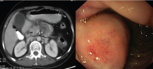 Left: Contrast-enhanced computed tomography abdomen: hypodense lesion noted posteromedial to the second part of the duodenum (arrow); Right: Endoscopy showing an extrinsic bulge at the junction of first and second part of the duodenum