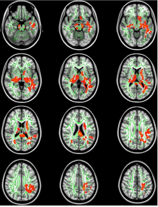 Tract-Based Spatial Statistics (TBSS) analysis showing significant differences in fractional anisotropy (FA) values between the rs2312147 CC genotype group and the CT/TT genotype group in patients with schizophrenia.Voxels demonstrating significant increases in FA values for the CC genotype group compared with the CT/TT genotype group are shown in red-yellow (TFCE-corrected p<0.05). Results are overlaid on the Montreal Neurologic Institute 1 mm template (Z = −20 to Z = 46) and the mean FA skeleton (green). A threshold-free cluster enhancement method was applied using a permutation-based inference tool for nonparametric statistics. The number of permutations was 10,000. Left-right orientation is according to radiological convention.