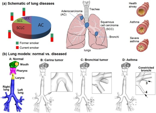 Schematic of lung diseases and airflow dynamics.(a) Lung diseases subtypes: squamous cell cancer (SCC), adenocarcinoma (AC), large cell cancer (LCC), and small cell lung cancer (SCLC), and asthma. (b) Lung models with healthy and diseased conditions: Model A with normal airway structure, Model B with an adenocarcinoma at the carina ridge (carina tumor), Model C with a squamous cell carcinoma on a left segmental bronchus (bronchial tumor), and Model D with constricted segmental bronchi (asthma).