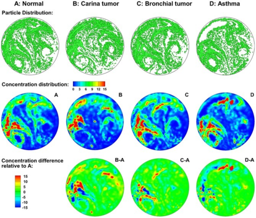 Visual and quantitative comparison of exhaled aerosol fingerprints (AFPs) among the four models.The first row shows particle distributions collected at the mouth. The second row shows the particle concentration distributions, and the third shows the concentration differences relative to the normal condition.