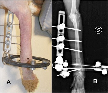 Clinical (A) and radiographic (B) pictures of a construct IB for stabilisation of a radius-ulna fracture. The distal short segment was stabilised by two K wires tensioned on the ring and a threaded pin on a post, and the proximal long segment by three threaded pins on a rail. Note the use of a radiolucent ring to allow for an unobstructed visualization of the fracture area.