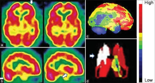 "An 18-year-old male with severe anxiety neurosis revealed hyperactive prefrontal cortices and basal ganglia in technetium-99m-hexamethylpropyleneamineoxime brain perfusion single photon emission computed tomography images. (a) Transverse view, (b) sagittal view, (c) right lateral view of three-dimensional Talairach cortical perfusion report, (d) extracted basal ganglia and thalamus by ""Neurogam"" processing, (e) color scale for (c and d)"