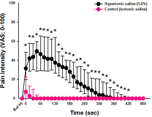Pain intensity on the hypertonic saline side and control side. Graph  showing the median (
