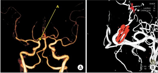 (A) Preoperative 3-dimensional computed tomography angiogram showing small aneurysm at the right internal carotid artery bifurcation. A: Blood blister-like aneurysm. (B) Postoperative transfemoral cerebral angiography 3-dimensional image showing clipping.