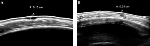 High frequency ultrasonography examples of depth measurement. A) Superficial basal cell carcinoma. B) Nodular basal cell carcinoma