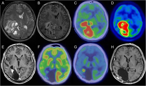 Magnetic resonance imaging (MRI) and positron emission tomography (PET). (A) T2-weighted image showing a huge multicystic mass in the right occipitoparietal area with marked surrounding edema and shift of the midline structures to the left side. (B) Each cyst wall and adjacent cortical mass was enhanced with contrast medium. (C) Fluorodeoxyglucose (FDG) PET showing high accumulation in the right occipitoparietal area. (D) Methionine (MET) PET showing high accumulation in the right occipitoparietal area. (E, F) MRI and PET findings at the time of recurrence. (E) Small enhanced mass adjacent to the cavity formed by removal of the tumor. (F) FDG-PET showing no accumulation in the mass. (G) MET-PET showing high accumulation in the mass. (H) MRI 4 years after the first operation.