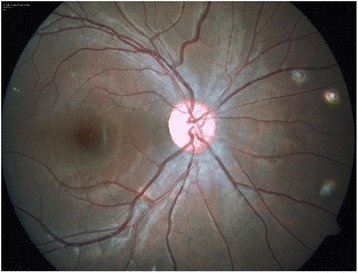 Color fundus photo of the right eye showing multiple healed choroidal tuberculomas.