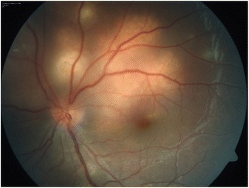 Color fundus photo of the left eye showing an active tuberculoma of the choroid.