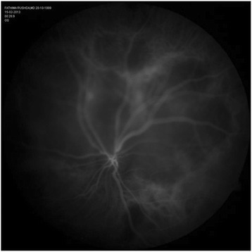 Early-phase ICG of left eye showing a large hypocyanescent area superior and superotemporal to disc.