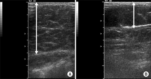 Abdominal subcutaneous fat on ultrasonography image. (A) Midline abdominal subcutaneous fat thickness (about 3.9 cm) was measured transversely at the one centimeter caudal to the umbilicus level. (B) Right flank abdominal subcutaneous fat thickness (about 1.9 cm) was measured coronally at two locations of the right flank, and the average value was recorded. The image was captured when the transducer just had contact with the skin to avoid compressing the subcutaneous adipose fascia.