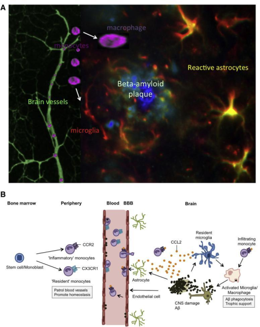 The migration of peripheral monocytes to beta-amyloid (Aβ) plaques in the AD brain. (A) A schematic rendering of fluorescent stainings (taken from our own laboratory) of an Aβ plaque with associated brain vessels. The Aβ core contains aggregated Aβ peptides, surrounded by reactive astrocytes and activated microglia. Monocytes migrate into the brain and may differentiate into macrophages or microglia. (B) A hypothetical rendering of monocyte recruitment into the AD brain. The recruitment of monocytes into the AD brain begins when Aβ deposition and associated neuronal damage triggers a local immune response activating astrocytes, endothelial cells, and microglia. This activation leads to the secretion of the chemokine CCL2, which recruits more immune effector cells (mainly CCR2+ monocytes) to the site of parenchymal Aβ deposition. Resident microglia appear to lose their ability to effectively phagocytose Aβ, however, blood-derived monocytes differentiate into macrophages, which are more effective at phagocytosis and clearing Aβ plaques. Although CCR2+ inflammatory monocytes have become the primary monocyte subpopulation implicated in providing therapeutic benefits to the AD brain, recent data indicates that CX3CR1hi resident monocytes may be responsible for clearing vascular Aβ deposition.This cartoon B has been partly adapted and modified from others: Britschgi and Wyss-Coray (2007), El Khoury and Luster (2008), Gate et al. (2010), Hickman and El Khoury (2010), Malm et al. (2010), Michaud et al. (2013), Mildner et al. (2011).