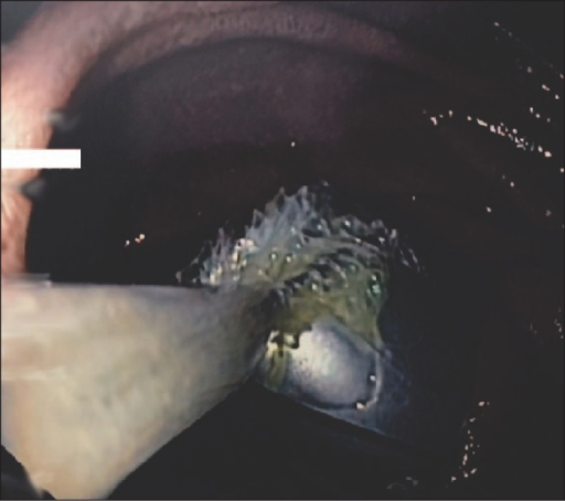 Endoscopic view showing a cylindrical battery in the proximal jejunum retrieved using a Roth net.