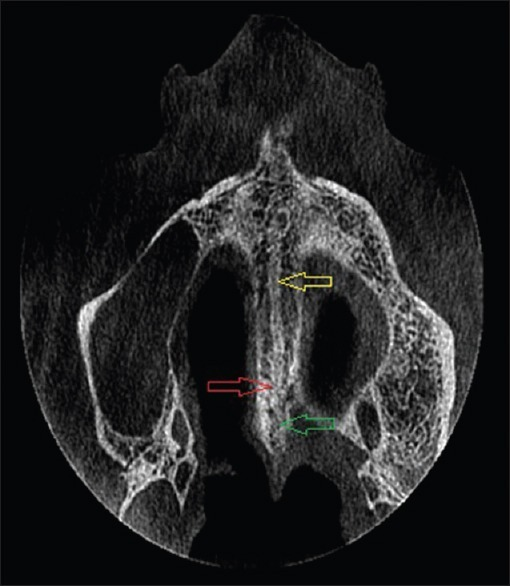 Paraxial view of the hard palate of the first patient. Note ossification at posterior portion and incomplete ossification at anterior portion. Yellow (superior) arrow points toward parallel hyper-dense lines with intermediate hypo-dense area. Red (middle) arrow indicates the location of maxilla-palatine suture and green (lower) arrow corresponds to posterior fusion of palatal halves