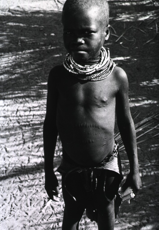 <p>A young boy with numerous scars on his abdomen.</p>