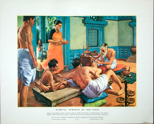 <p>Susruta, famed Hindu surgeon, is about to form an artificial earlobe for a mutilated patient.  Ths Susruta-samhita, ancient Indian text on surgery, describes this and other procedures, as well as ancient instruments.</p>