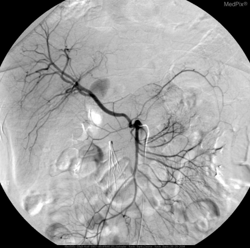 Selective angiographic evaluation of the superior mesenteric artery demonstrates an abberent vessel arising from the SMA supplying the right hepatic lobe.