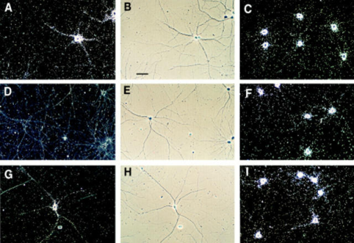 Regulation of BC1 expression by neuronal activity.  Hippocampal neurons were grown in culture for 14 d in the absence of TTX (A–C), in the presence of 1 μM TTX (D–F), or in  the presence of 1 μM TTX for the first 9 d, and in the absence of  TTX for the following 5 d (G–I). Left (A–G): BC1 RNA, dark-field  photomicrographs; middle (B–H), BC1 RNA, phase contrast  photomicrographs, corresponding to dark-field photomicrographs  in left column; right (C–I): 7SL RNA, dark-field photomicrographs. Dark field photomicrograph D (BC1 RNA in the presence of TTX) was overexposed to reveal absence of any significant labeling over cells or neurites. All cultures were grown at  medium density. Bar, 50 μm. (J) Cultured hippocampal neurons  on coverslips were exposed to autoradiographic film. Autoradiographs show BC1- and 7SL-labeling signals for cells that were grown for  14 d in the absence of TTX (1), in the presence of 1 μM TTX (2), or in the presence of 1 μM TTX for the first 9 d and in the absence of  TTX for the following 5 d (3). (4) Sense strand control.