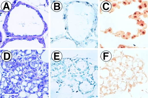 Immunohistochem- ical detection of Stat5 phosphorylated at Y694 in ErbB4ΔIC-expressing mammary glands at 12-d postpartum. High magnification representations of expanded lobuloalveoli lacking detectable ErbB4ΔIC expression (A–C) or a different region of the same section containing condensed lobuloalveoli expressing high levels of ErbB4ΔIC protein (D–F). Sections were stained with hematoxylin/eosin (A and D), or stained by immunohistochemistry with antiphospho-Stat5 antibody preadsorbed with peptide immunogen and counterstained with methyl green (B and E), or phospho-Stat5 antibody without counterstain (C and F). Bar in D, 30 μm.