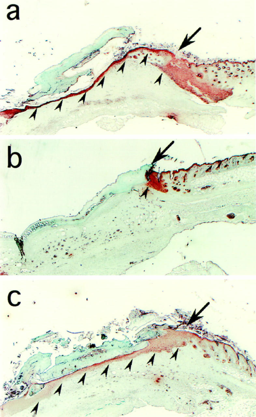 Effect of OSU8-1 on wound healing in vivo. Histology of excised mouse skin on day 6 after wounding, without or with 10 mM OSU8-1 treatment. Keratinocytes were stained with antikeratin/cytokeratin antibody. (a) A typical tissue section from the control wounds (n = 15). Keratinocytes are observed to have migrated from the edge of the wound, spreading under the crust and covering the wound site. Arrowheads indicate the base of the keratinocyte layer. The arrow marks the edge of the wound. (b) A typical tissue section from an OSU8-1–treated wound (n = 10). Both keratinocyte migration and the regeneration of the epidermis were greatly inhibited. (c) A typical tissue section from a wound treated with a cocktail of OSU8-1 and HB-EGF (5 μg/ml; n = 5). Both keratinocyte migration and the regeneration of the epidermis were completely restored.