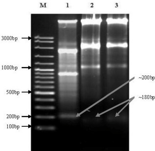 gel electrophoresis of extracted dna 0 5 Analysing isolation of dna plasmid and agragose of gel  the aim of agarose gel electrophoresis is to analyse the plasmid dna that  isolation of dna.